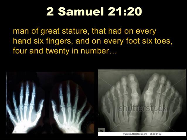 2 Samuel 21:20 - Six fingers and toes on giants, twenty digits total