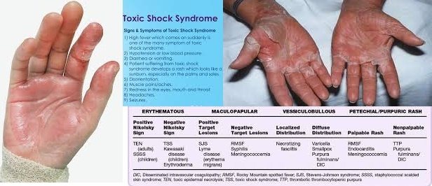 Toxic-Shock-Syndrome Infographic